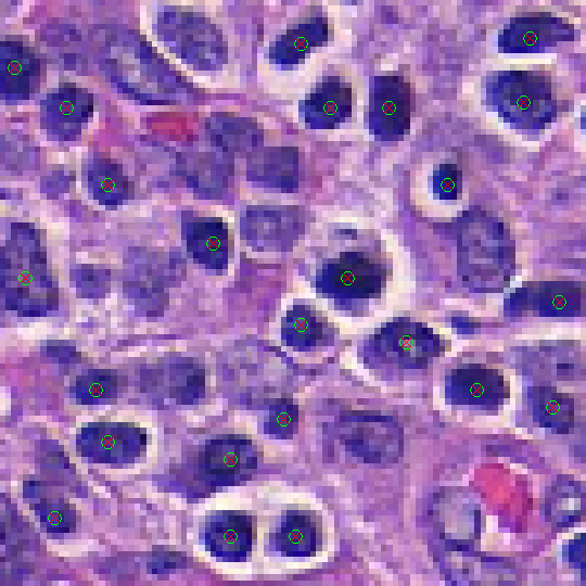 lymphocyte-step5-io_overlay